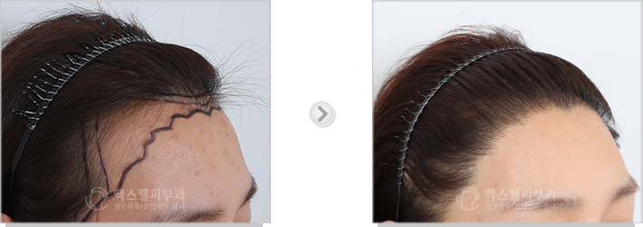 Before and after of female hair line transplant